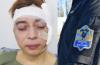 La lista de casos de violencia policial que no conmueve al oficialismo en la Cámara